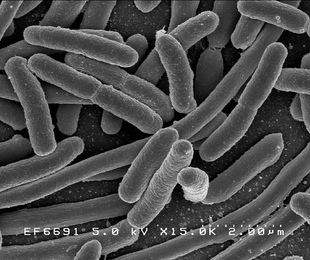probiotic, beneficial bacteria, gut