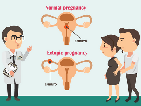Ectopic Pregnancy – What are the signs?
