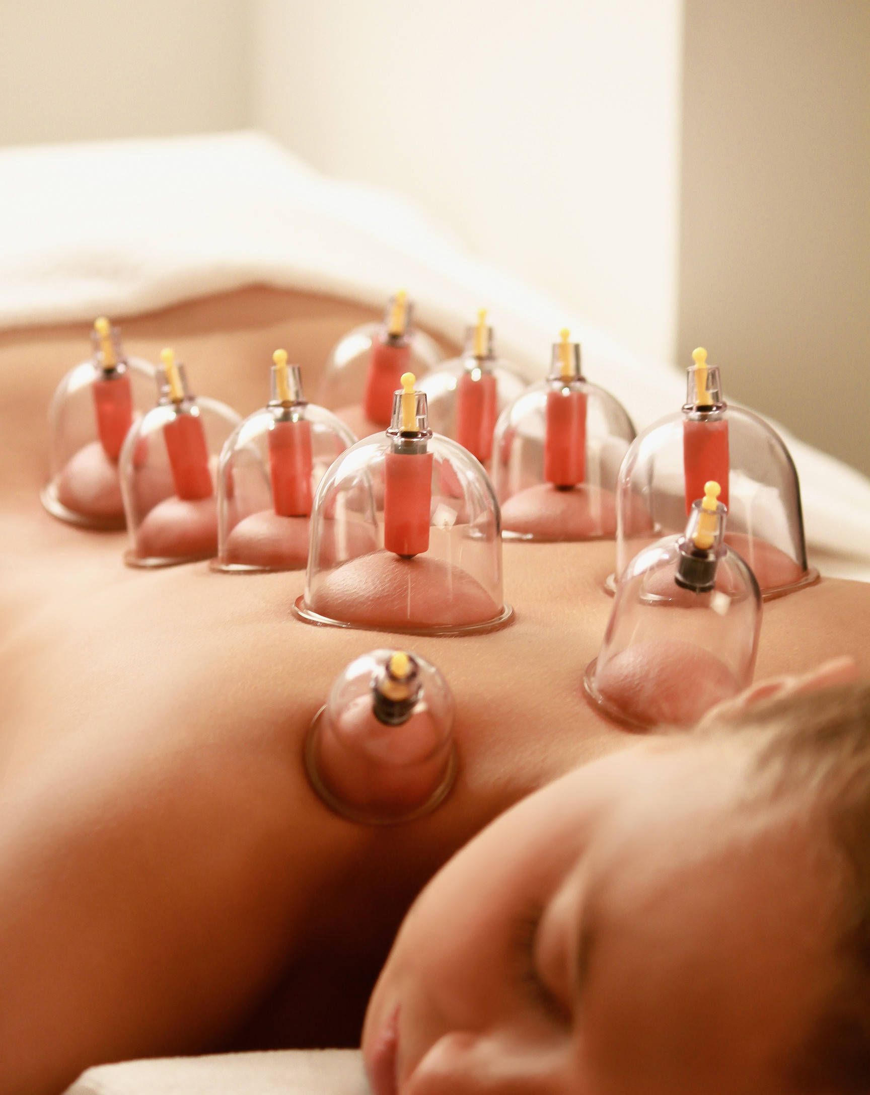 Cupping Ventousotherapy