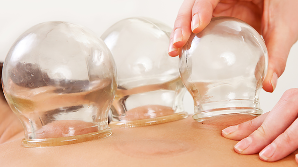 cupping-pro.png