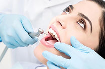 root-canal-treatment.jpg