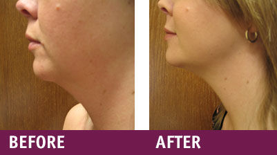 Laser-Lip-Before-and-After1.jpg