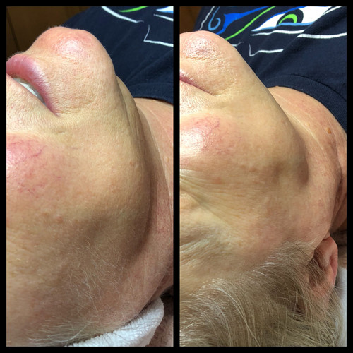 Dermaplane before & after