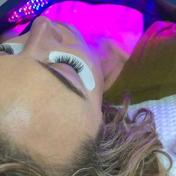 Celluma LED Wrinkle Treatment