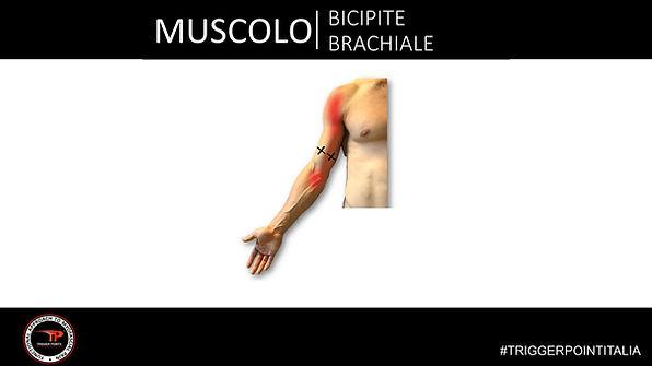 trigger point bicipite brachiale.JPG