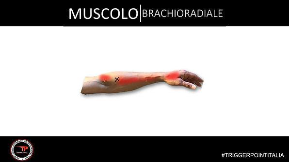 trigger point brachioradiale.JPG