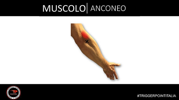 trigger point anconeo.JPG