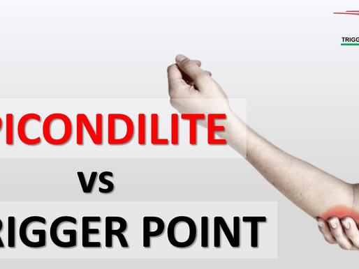 Epicondilite o trigger points miofasciale?