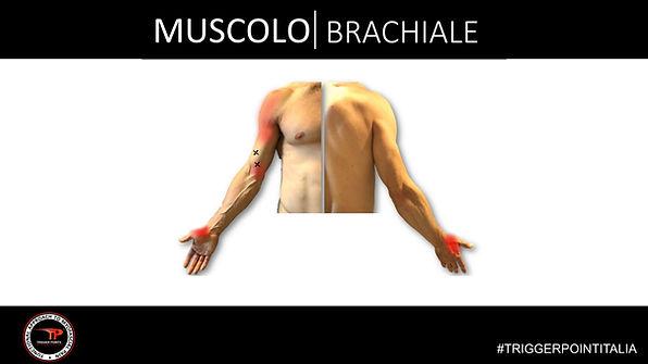 trigger point brachiale.JPG