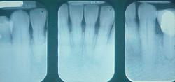 Убыль костной ткани на 50%, рентген