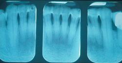 Рентген снимок после шинирования