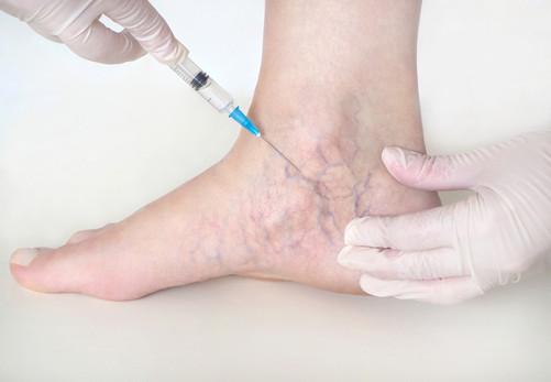Skleroterapia tel. 531808866