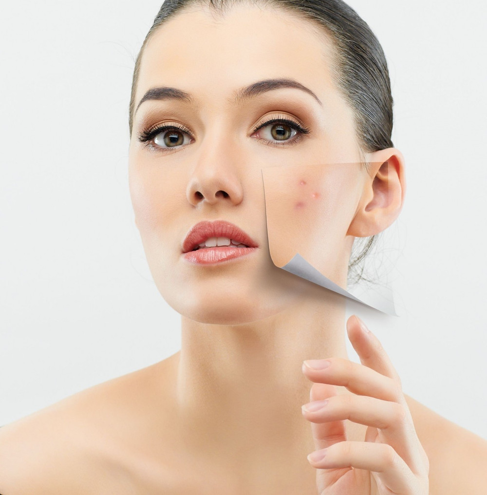 Adult acne breakouts