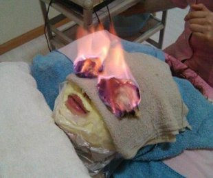 fire-treatment.jpg