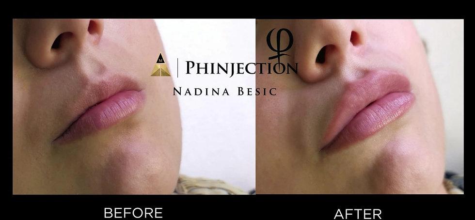 PhInjection 3.jpeg