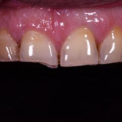 clinica dental providencia