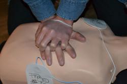Réanimation cardio-pulmonaire