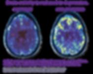 Mark-George-Brains-768x613.png