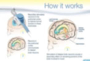 TMS_How_It_Works.jpg