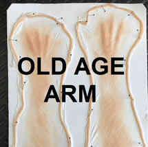 AGE ARM