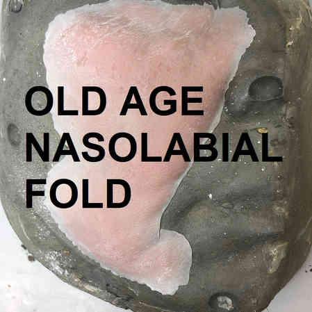 AGE NASOL