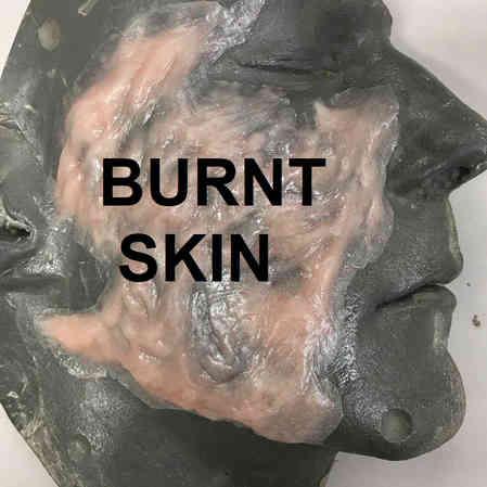 BURNT SKIN