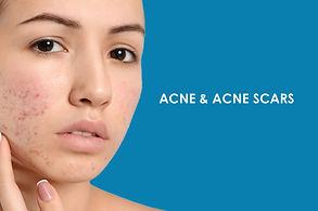 Acne and Acne Scars.jpg