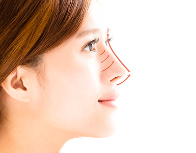 nose_lifting-removebg-preview.png