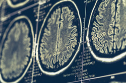 MRI brain scan or x-ray neurology human head skull tomography test