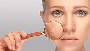 pores-dilates-visage.png
