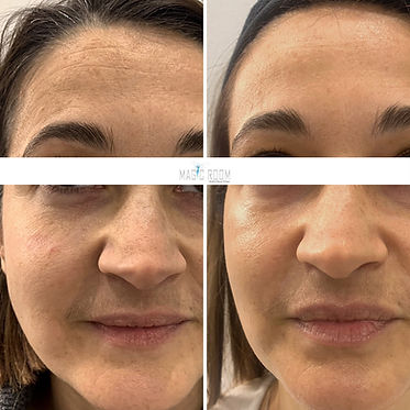 radiofréquence visage résultats.JPG