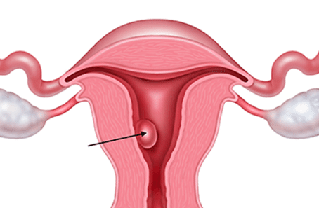 Pólipos de útero e infertilidad