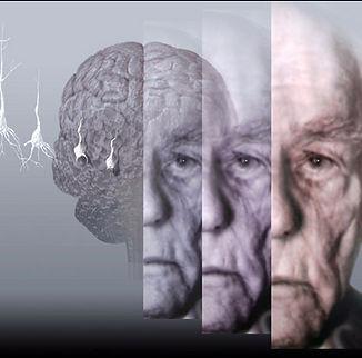 Dr. Javier Castro Dono, neurologia, alzheimer, demencia, cefaleas, parkinson, migrañas, ictus, epilepsia, esclerosis multiple