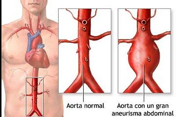 Aneurismos de aorta - Cirujanos vasculares Vigo