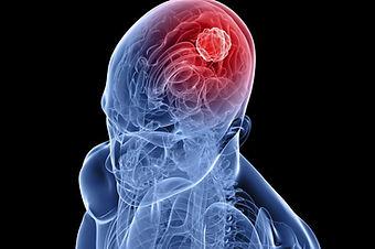 enfermdad cerebro vascular vigo