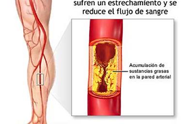 enfermedar arterial periferica vigo