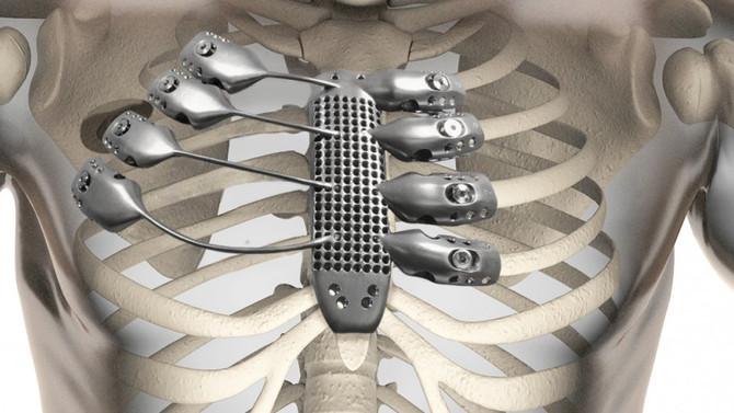 Un paciente recibe un esternón de titanio totalmente personalizado gracias a la impresión 3D