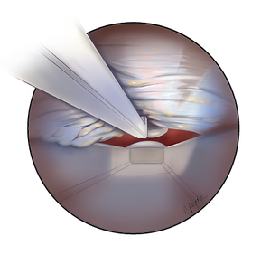 endoscopic view.png