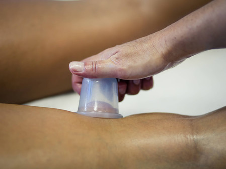 Basic Cupping Techniques