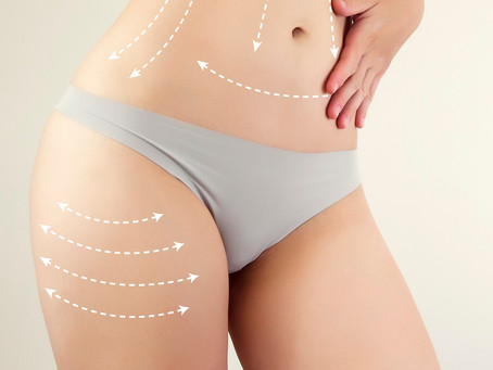 Cellulite Cupping