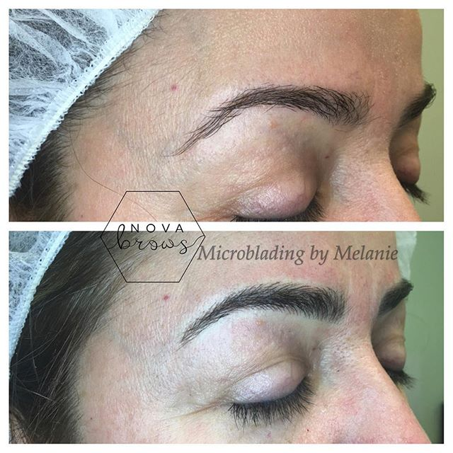 Never draw your eyebrows in again! #microblading #pmu #eyebrows #eyebrowsonfleek #novabrows