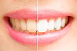 Voor en na White behandeling