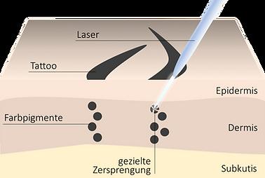 Tattooentfernung Stuttgart Laserbehandlung