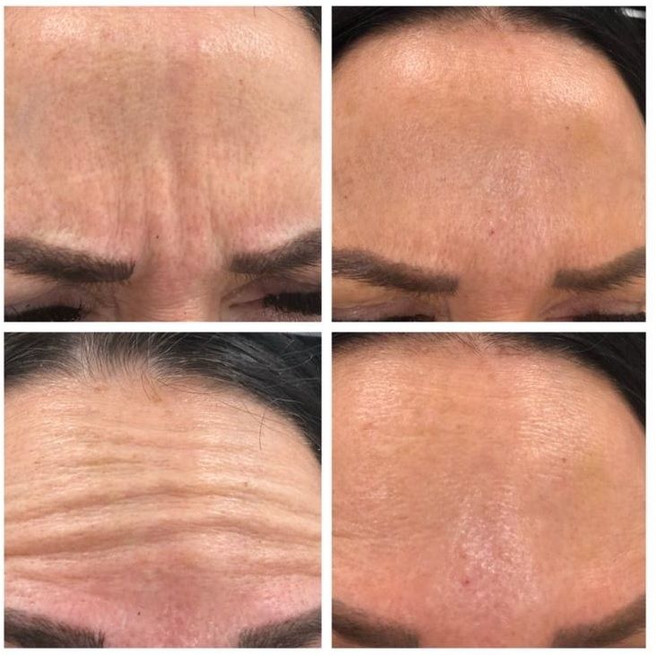 Anti-Wrinkle Treatment by Claire Ireland