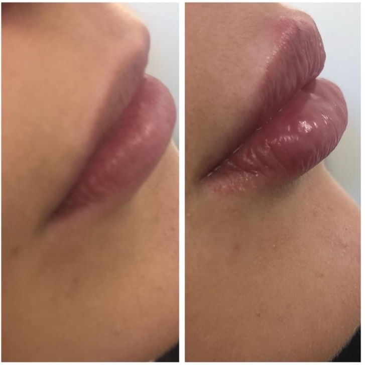 Lip augmentation by Claire Ireland