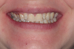Replacement with a natural looking porcelain bridge by Dr Robert Coveney