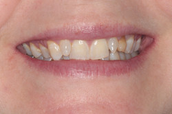 A 40 year old lady with a retained baby tooth which had discoloured and was loose.