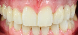 Whitening, composite bonding and bridgework by Dr Alistair McNeil