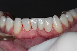 Bridge Replacement for All-Ceramic by Dr Robert Coveney