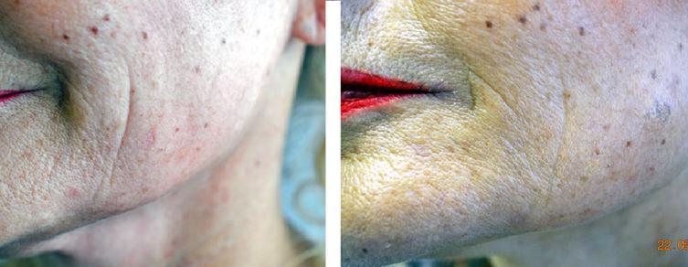 Frac3 Skin Rejuvenation